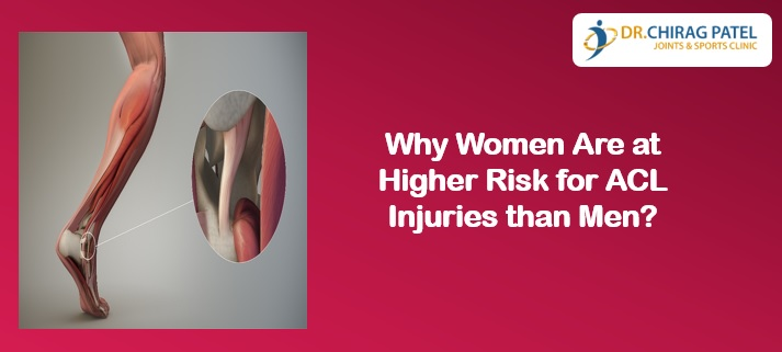 Why Women Are at Higher Risk for ACL Injuries than Men?