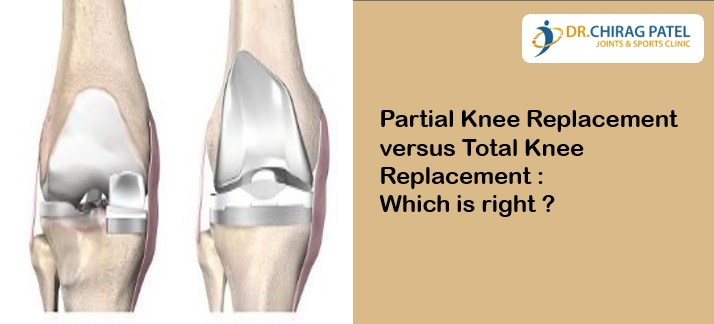 Partial Knee replacement versus Total Knee Replacement