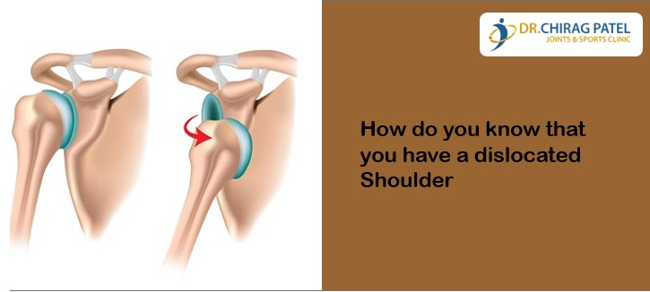 How do you know that you have a dislocated Shoulder