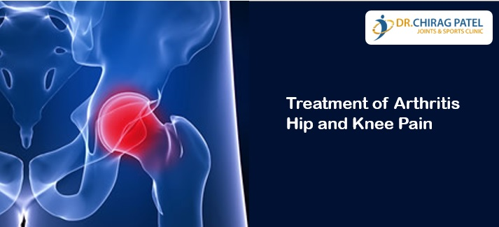 Treatment of Arthritis Hip and Knee Pain