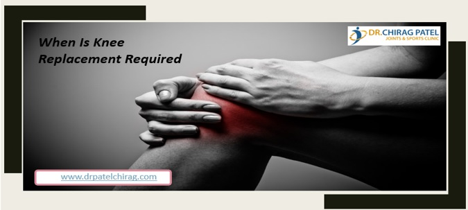 When Is Knee Replacement Required – Dr Chirag Patel