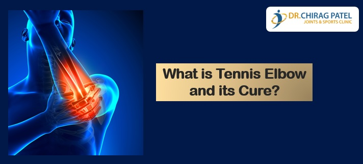 What is Tennis elbow and its cure
