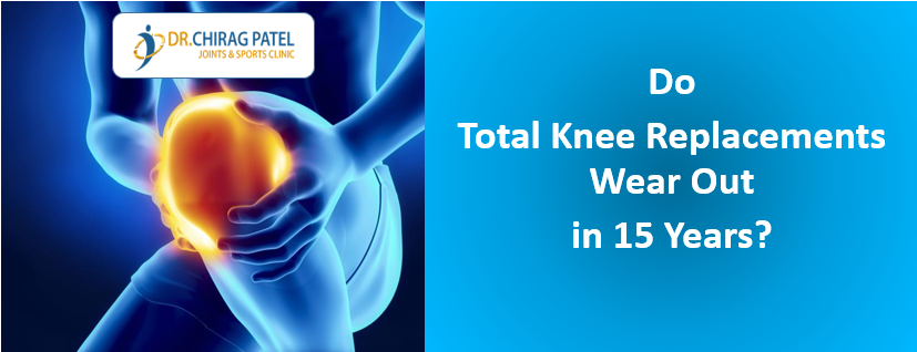 Knee Replacement Worn out - Dr Chirag Patel Surat