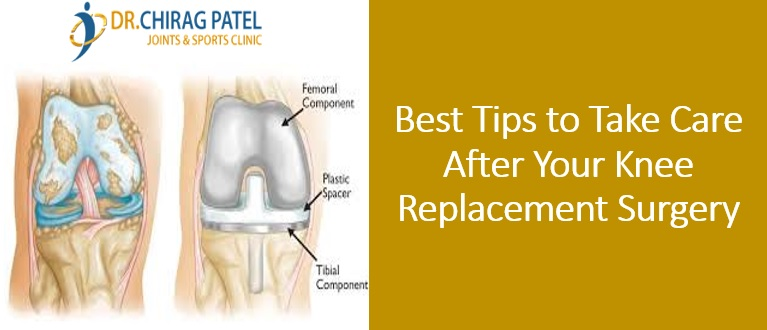 Dr Patel Chirag - Knee Replacement Surgery