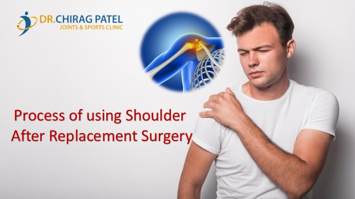 Shoulder Replacement in Surat