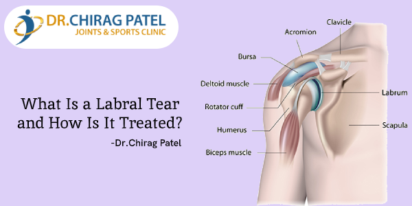 Joint Replacement Surgeon in Surat
