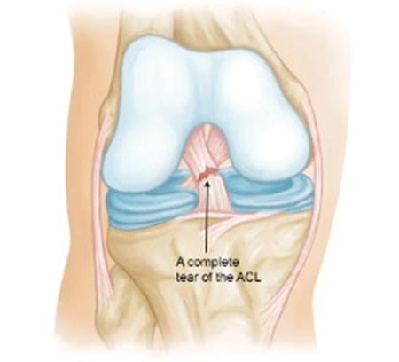 Acl Reconstruction Surgery Surat india